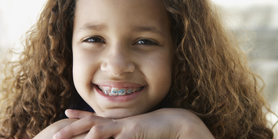 Braces for children, teens, and adults | Sexson Orthodontics