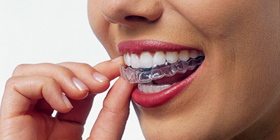 Invisalign and Invisalign Teen | Sexson Orthodontics