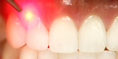 Laser Treatment | Sexson Orthodontics