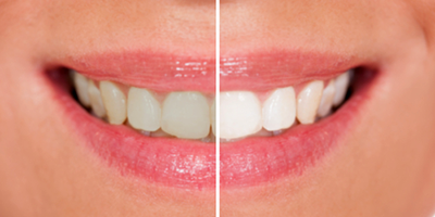 Teeth whitening | Sexson Orthodontics